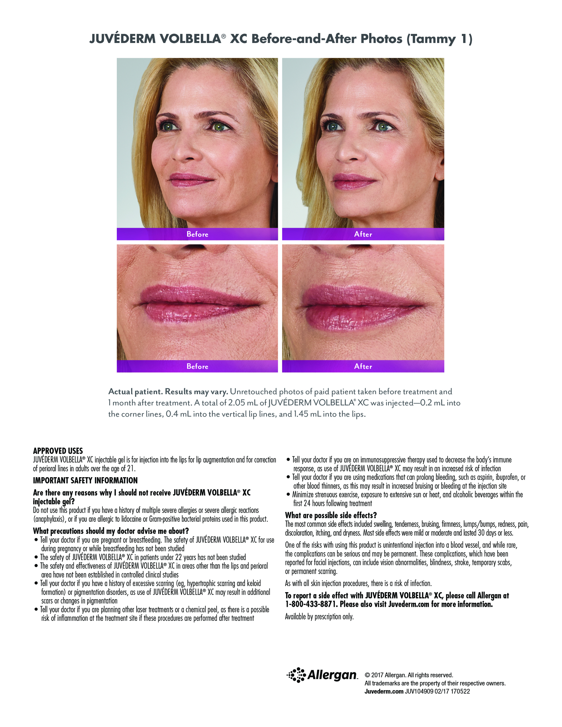 FDA Approved Lip Filler Juvederm Volbella XC Portland, Maine