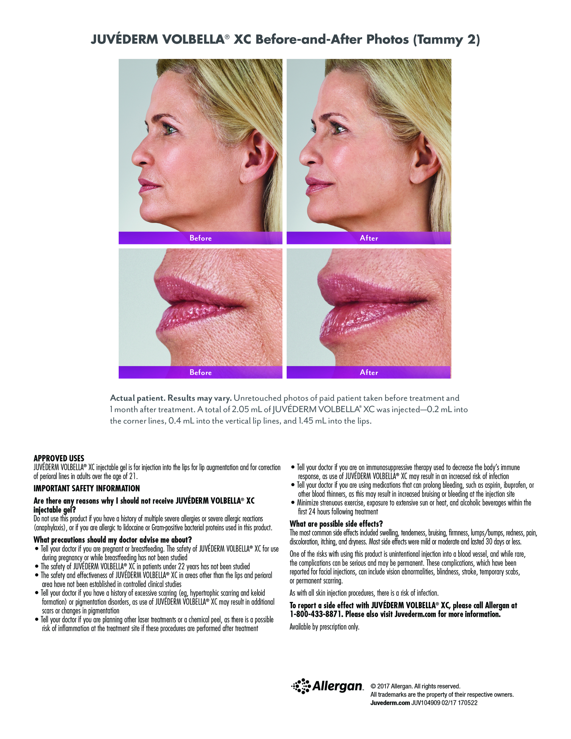 Lip Filler Portland, Maine FDA Approved Volbella