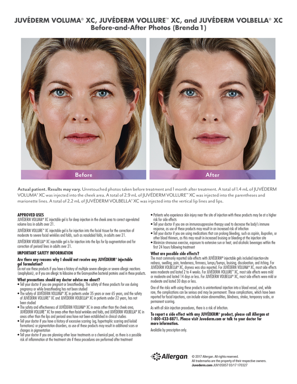 Juvederm offered by Purely Skin South Portland Maine
