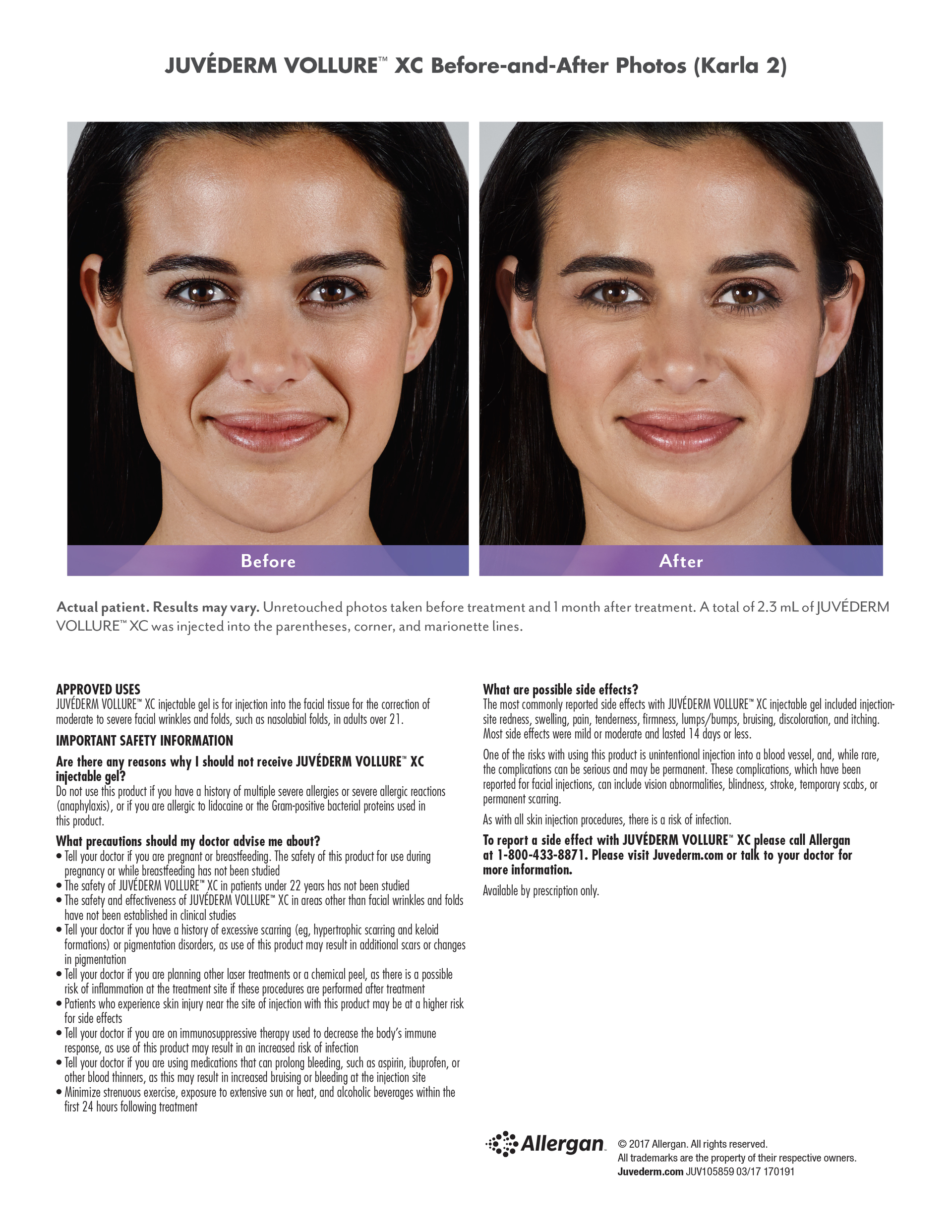 Juvederm Vollure XC FDA Approved Skin Filler Portland, Maine