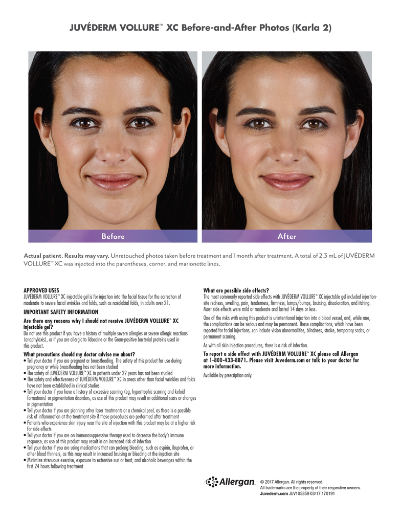 Purely Skin of Greater Portland ME Juvederm Vollure XC