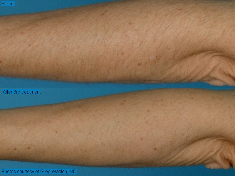 Purely Skin Serving Greater Portland Me Laser Hair Removal